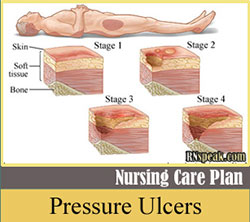 Pressure-Ulcers nursing care plan