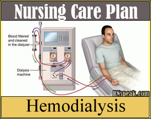 hemodialysis Hemodialysis Nursing Care Plan Risk for excess Fluid Volume