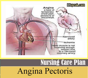 Angina (Chest Pain) -Nursing Care Plan