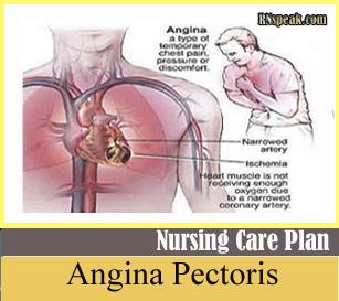 Angina Angina (Chest Pain)  Nursing Care Plan