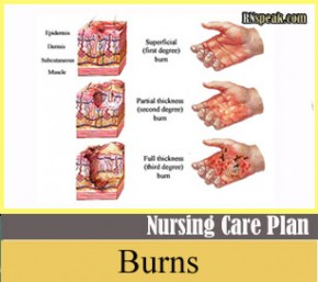 Classification of Burn2 290x257 Burns Nursing Care Plan Risk for Fluid Volume Deficit