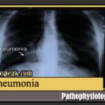 Pneumonia Pathophysiology & Schematic Diagram