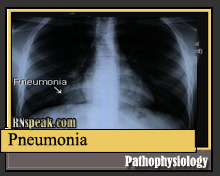 Pneumonia Pathophysiology & Schematic Diagram