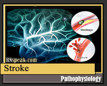 Stroke Stroke Pathophysiology & Schematic Diagram