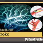 Stroke Pathophysiology & Schematic Diagram