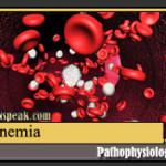Anemia Pathophysiology & Schematic Diagram