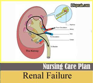 Renal Failure NCP