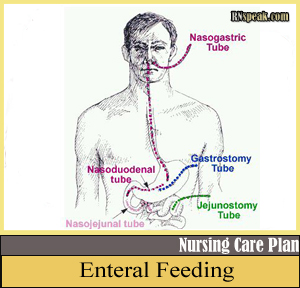 Enteral Feeding Enteral Feeding Nursing Care Plan   Imbalanced Nutrition, less than body requirements