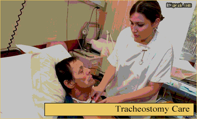 Tracheostomy Care procedure picture Tracheostomy Care Nursing ...