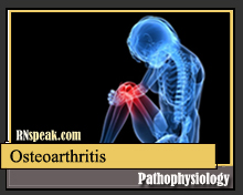 Osteoarthritis Pathophysiology & Schematic Diagram