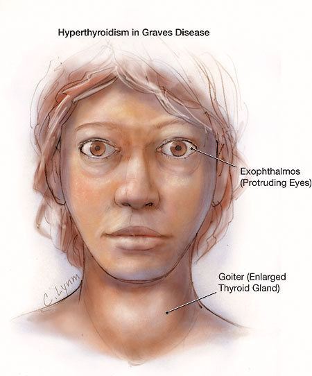 wpmen with hyperthyroidism picture