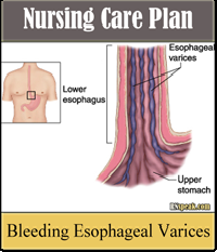 Bleeding Esophageal Varices Nursing Care Plan – Altered Tissue Perfusion Related to GI Bleeding