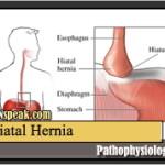 Hiatal Hernia Pathophysiology & Schematic Diagram