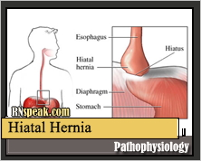 Hiatal Hernia Pathophysiology & Schematic Diagram