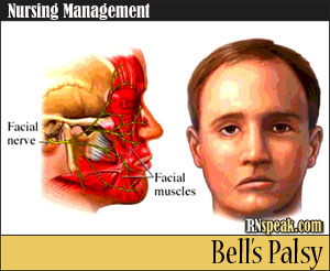 Bell's Palsy Nursing Management – An Insight into the Cranial Nerve Disorder
