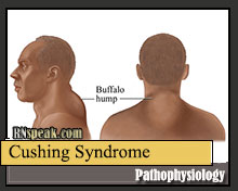 Cushing's Syndrome – Pathophysiology and Schematic Diagram