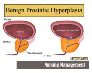 Benign-Prostatic-Hyperplasia-(BPH)-Nursing-Management