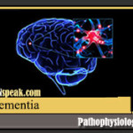 Dementia Pathophysiology and Schematic Diagram