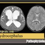 Hydrocephalus Pathophysiology and Schematic Diagram
