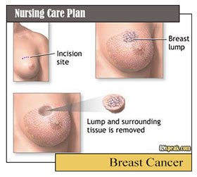 Nursing Care Plan Breast Cancer