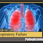 Respiratory Failure Pathophysiology and Schematic Diagram