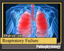 Respiratory Failure Pathophysiology and Schematic Diagram