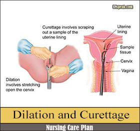 dilation-and-curettage-nursing-care-plan