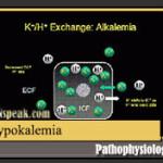 Hypokalemia Pathophysiology and Schematic Diagram