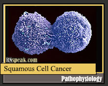 Squamous Cell Cancer Pathophysiology and Schematic Diagram