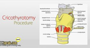 cricothyrotomy-procedure for nurses