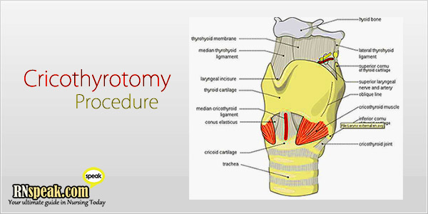Cricothyrotomy Procedure