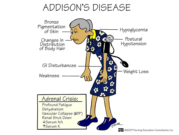 Addison's Disease (Adrenocortical Insufficiency)