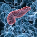 Pancreatitis Pathophysiology and Schematic Diagram