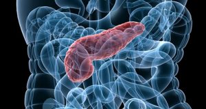 pancreatitis-pathophysiology diagram