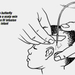 Scalp Vein Infusion - Pediatric IV Therapy