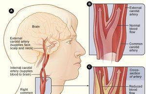 stroke-nursing-care-plan illustration
