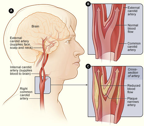 cerebrovascular accident, Skeleton