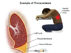 thoracentesis-nursing-responsibilities procedure