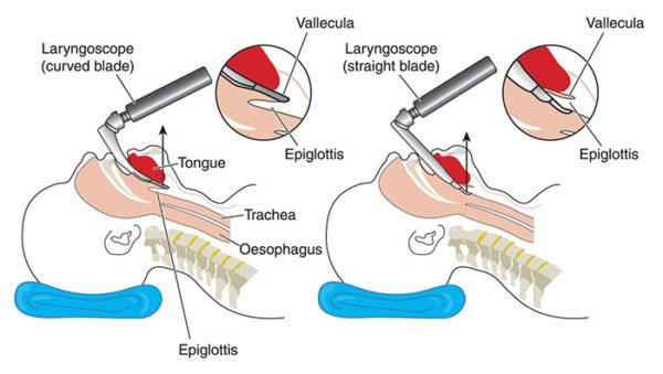 intubation-procedure-management-nurse-roles