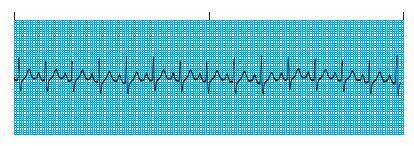 mi cardiac rythm