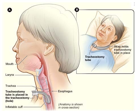 tracheostomy tube placement anatomy
